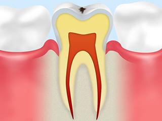 虫歯 発熱